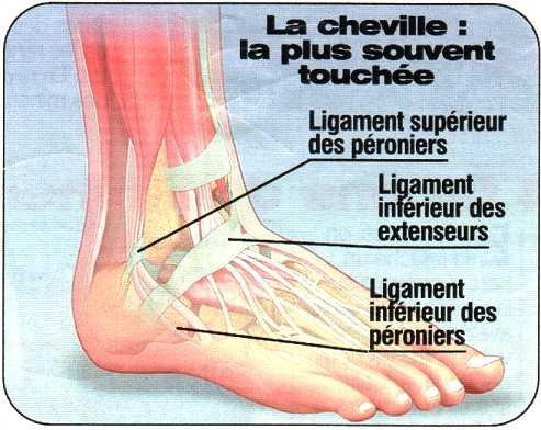 ligaments du pied douleur