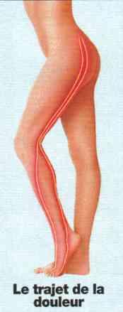 sciatique symptômes jambe